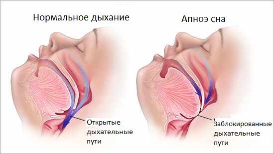 апноэ лечение